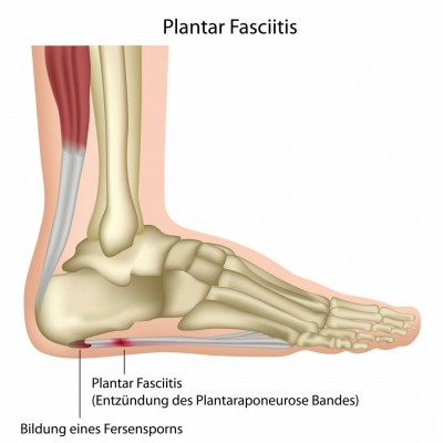 Plantar Fasciitis or joggers heel an early sign of diabetes