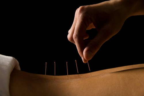 Acupuncture needles. Photo credit: Dollar Photo Club